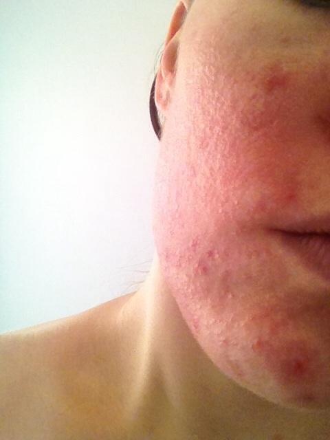 Tanning Bed Rash